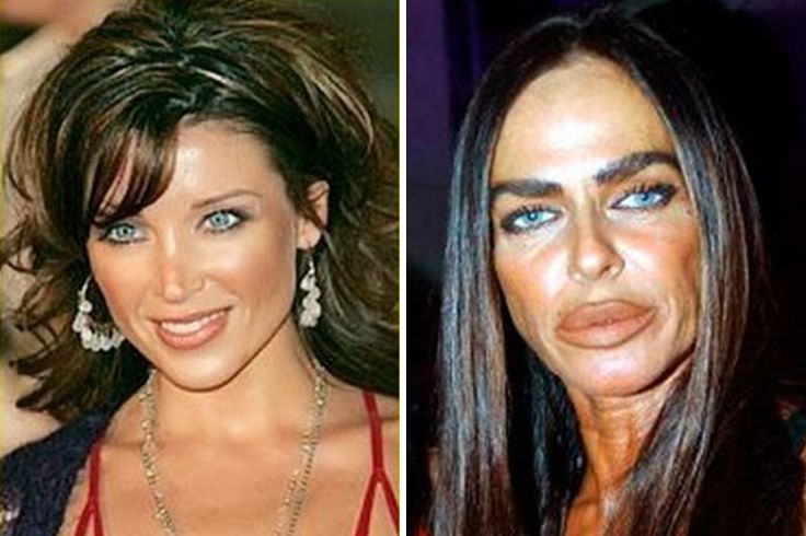 Michaela Romanini, Italian socialite, developed an addiction to lip collagen injections at a young age and still continues to get them today. Botox is essentially a toxin that paralyzes your face. Botox get rids of wrinkles, but don't you think it's a bit counter productive to get Botox then get a tan? You're just making things worse for yourself if you get your face paralyzed to get rid of wrinkles, then immediately expose your face to the sun (which gives you wrinkles.)