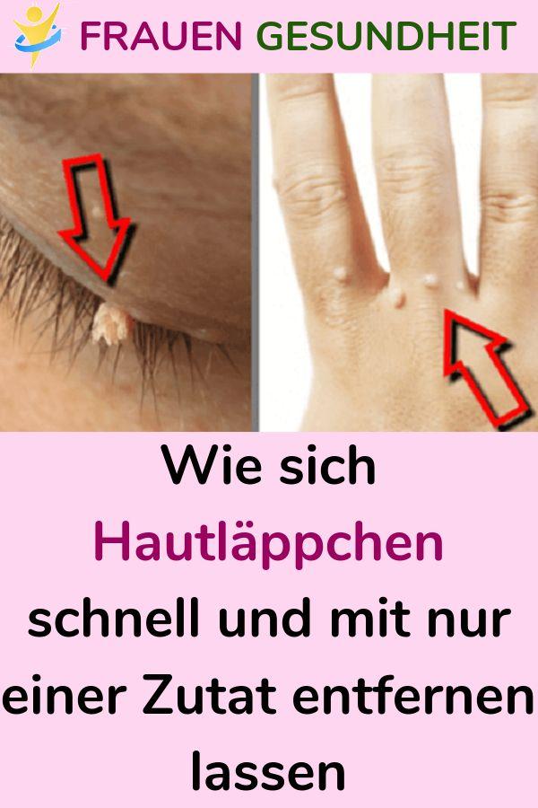 Wie sich Hautläppchen schnell und mit nur einer Zutat entfernen lassen  – Karl Sauer