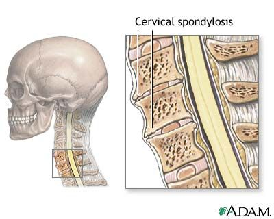 Pain in the Neck? It Could Be This Degenerative Disease: Overview of Cervical Spondylosis and Arthritis of the Neck