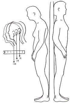 Исправление осанки Шея: Ключ к боли  За каждый дюйм, что голова движется вперед в позе, она увеличивает вес головы на шею на 10 фунтов!  В примере слева вперед позе шейка 3 дюйма увеличивает вес головы на шею на 30 фунтов, и давление на мышцы увеличивается в 6 раз.