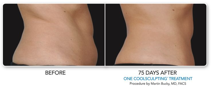 CoolSculpting Before and After Want to shed some extra body fat? Check out Cool …