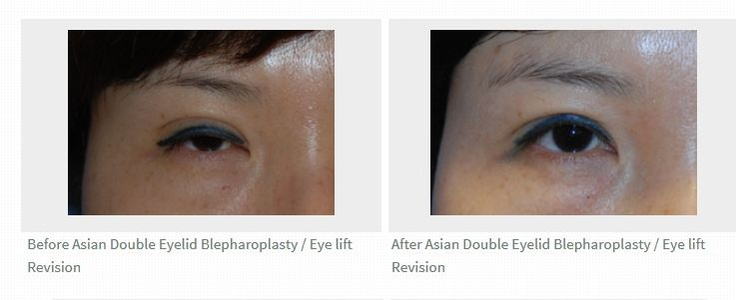 This is a revision surgery for a patient that had an eyelid surgery in Korea. She couldn't open her eyes all the way and we had to repair her levator and reset the crease in an actual lower position.