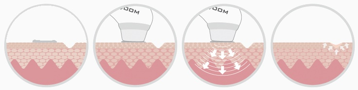 SQOOM refills your skin's moisture reservoirs. And while you are only rinsing the leaves with conventional cosmetic products, SQOOM irrigates the roots without a scalpel or a needle in a soft and completely uncomplicated way.