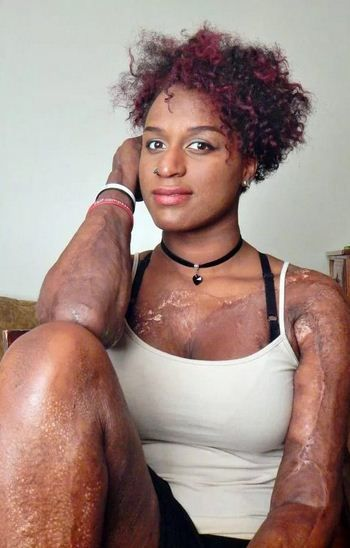 Meet The Lady Who Is Patched Up With Skin From Dead Bodies. (Photos)