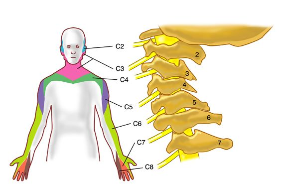 how to find pinched nerve in spine