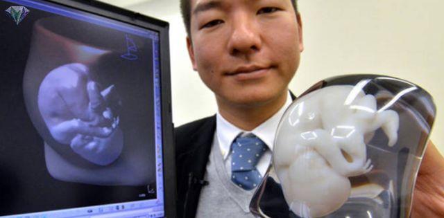 Teknologi Jepun Kini Cetak Gambar 3D Bayi Yang Belum Lahir   Tahniah pada para ibu yang tengah mengandung sekarang ni. Mesti sang suami & isteri sangat teruja untuk menyambut kedatangan ahli baru kan?  Macam manalah rupa anak kita kan bang? Muka dia ikut muka ayang ke abang ya? Eee tak sabar rasanya nak tengok anak kita!  Teknologi Jepun Kini Cetak Gambar 3D Bayi Yang Belum Lahir  Teknologi yang sangat canggih dari Jepun ini mula mencetak gambar bayi dalam perut secara 3D. Hebat kan!  Bukan…