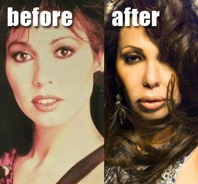 VISIT FOR MORE  Jennifer Rush 22 Most Shocking Celebrity Before And After Plasti…