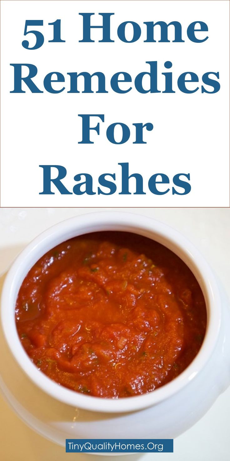 How To Cure Allergic Reaction Rashes Naturally