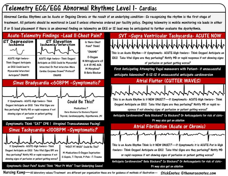 Acls study tips