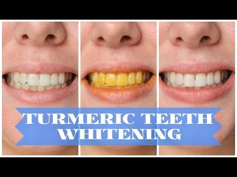 How To Whiten Your Teeth With Turmeric - YouTube