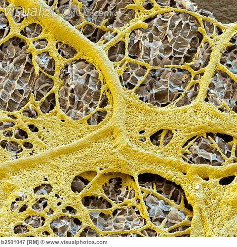 Slime mould (Physarum sp.) on an almond, SEM [b2501047] > Stock Photos | Royalty Free | Royalty Free Photos > Visualphotos.com