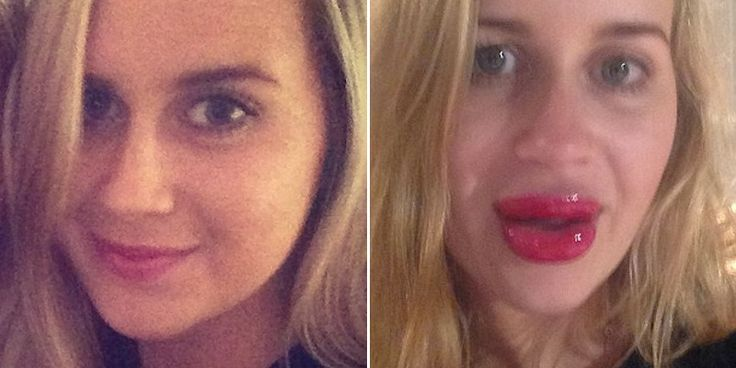 She Tried To Get Lips Like Kylie Jenner And It Went Horribly Wrong