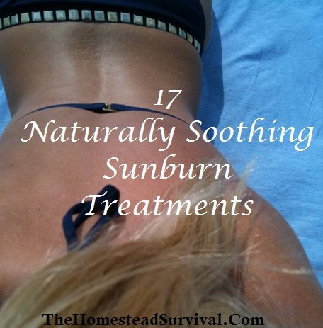 17 Naturally Soothing Sunburn Treatments » The Homestead Survival