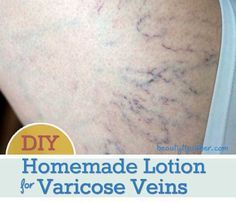Although I did start getting some small spider veins on my legs in my early 20s, I did not have any issues with varicose veins until my pregnancy. Find out how to relieve the annoying symptoms naturally. #varicose_veins_home_remedies