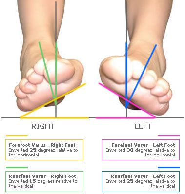 Foot shape assessment example shown identifies severe bilateral forefoot and rearfoot varus deformity