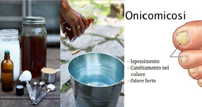 Onicomicosi