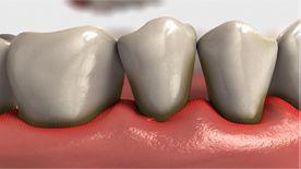 Exemplo de periodontite