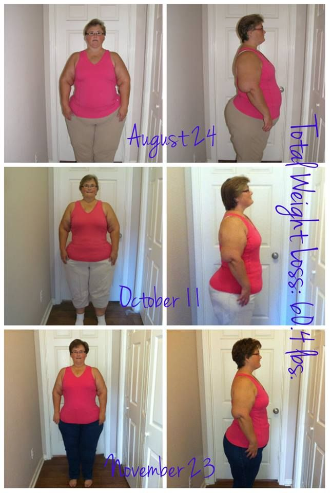 before and after weight loss www.omnitrition.com ...