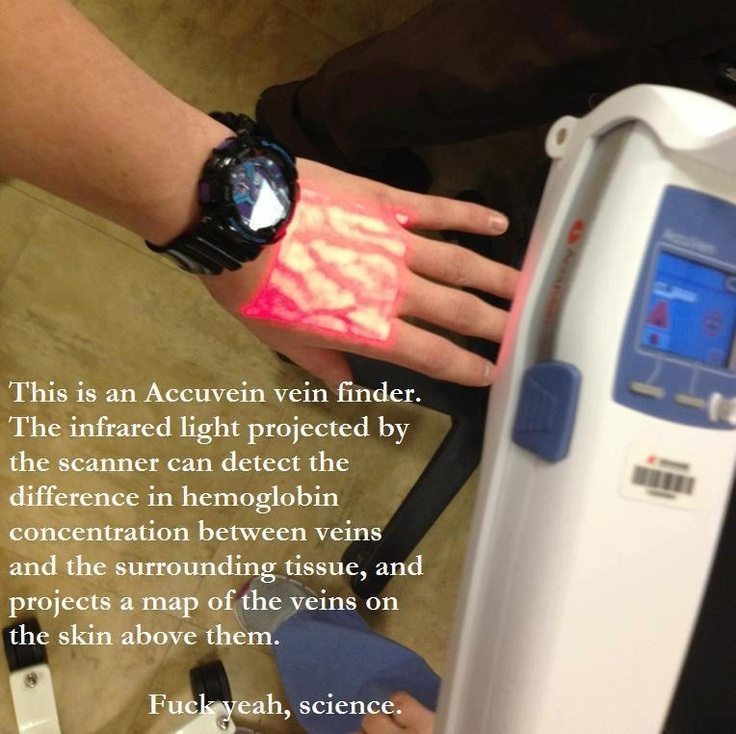 Accuvein vein finder. The device uses infrared to detect