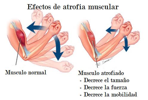 efectos de la atrofia muscular