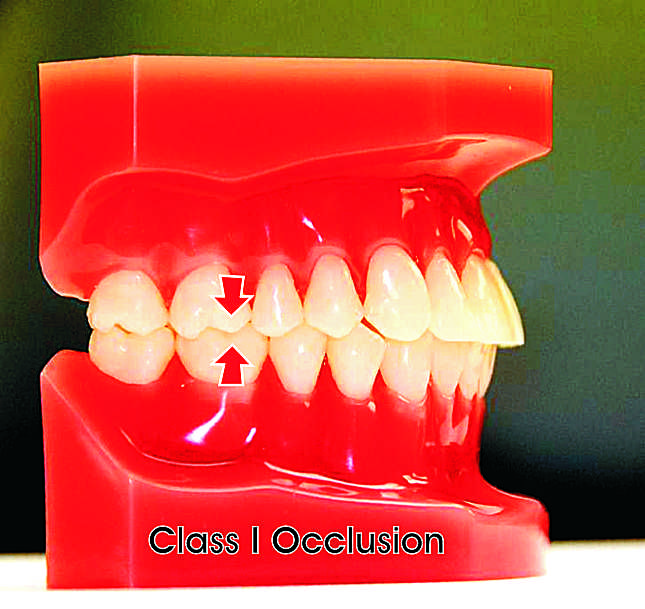 Class I Occlusion