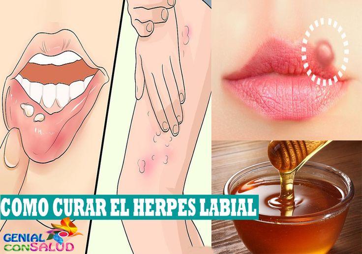 10 Remedios caseros efectivos para curar el herpes labial
