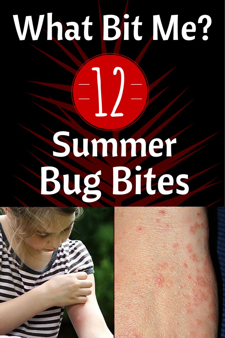 What Bit Me? Spot These 12 Summer Bug Bites: Is it a scabies mite bite, an ant bite or a lice bite? Find out! #bites #bugs #summer | everydayhealth.com