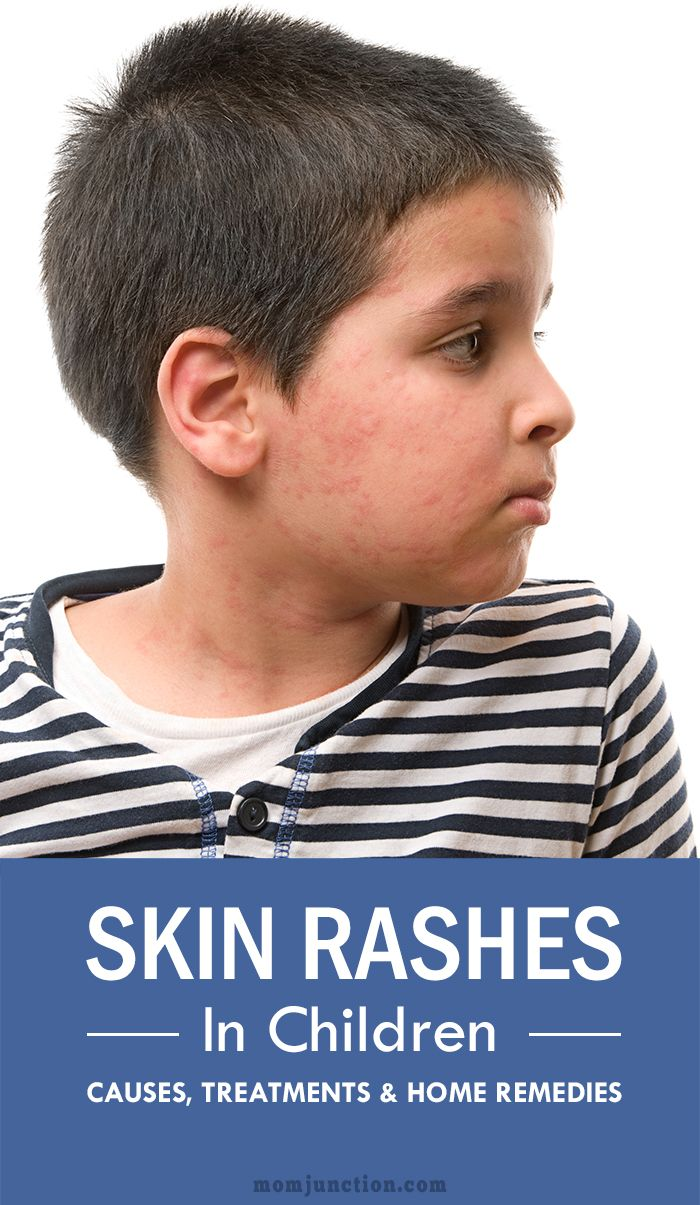 Skin rashes in children are very common. Read on to understand the difference between the various kinds of rashes along with causes and treatment options.