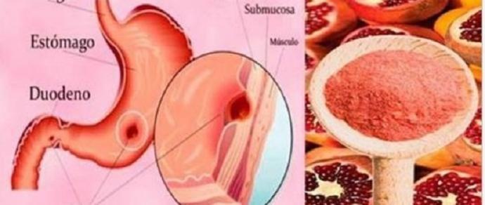 Elimine sua úlcera estomacal em 7 dias com  apenas 2 ingredientes - http://comosefaz.eu/elimine-sua-ulcera-estomacal-em-7-dias-com-apenas-2-ingredientes/