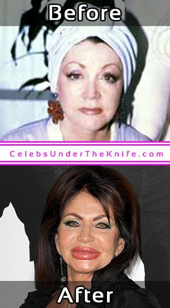 564 Best Botched Plastic Surgery images | Botched plastic ...
