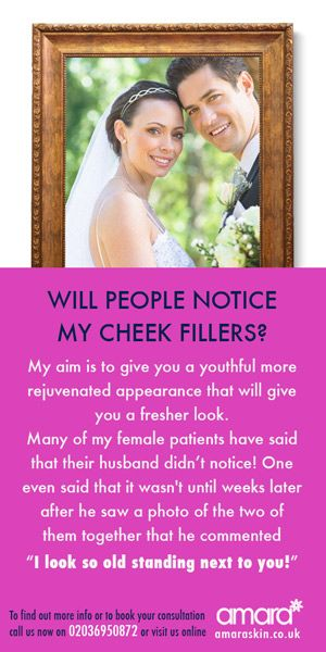 Will People Notice Cheek Fillers - Cheek Fillers London Amara