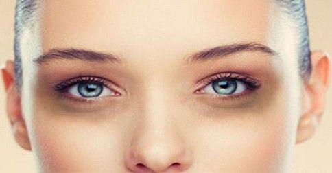 Pre tmavé kruhy pod očami nemusíte míňať veľa peňazí na kozmetiku, ktorá neraz obsahuje toxické látky. Skúste radšej tieto domáce recepty.