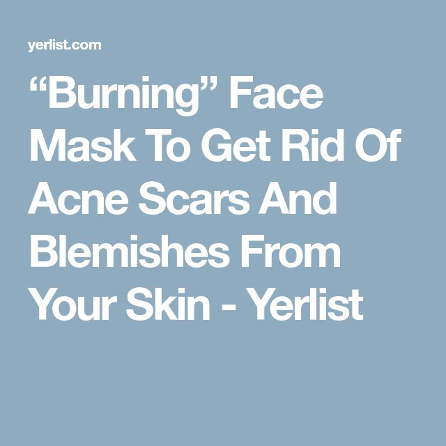 how to get rid of burns on face