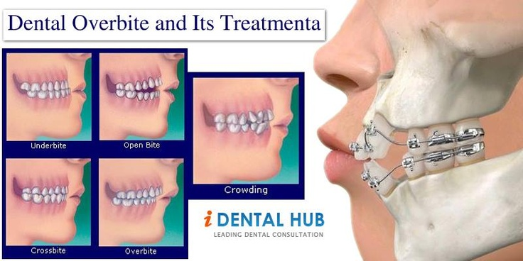 Overbite is the condition when maxillary anterior teeth overlap the mandibular anterior teeth. Though the problem is seen in children but if untreated can be carried forward till adult age. The treatment depends upon the severity of overbite and many range from braces to jaw surgery.