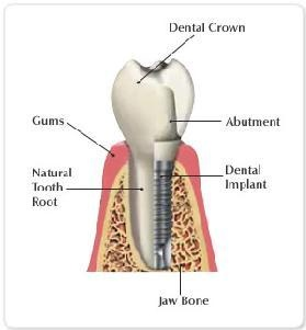 A dental implant designed to replace a single tooth is composed of three parts: the titanium implant that fuses with the jawbone; the abutment, which fits over the portion of the implant that protrudes from the gum line; and the crown and fitted onto the abutment for a natural appearance.