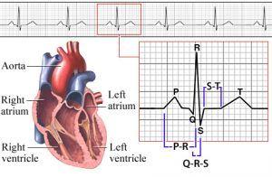 Solusi obat aritmia jantung tradisional dengan menggunakan bahan alami yang aman dan juga berkhasiat.