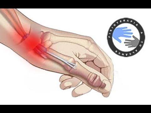Tendinitis de Quervain, que es y como se produce / Fisioterapia a tu alcance