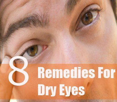 8 Herbal Remedies For Dry Eyes | http://www.searchhomeremedy.com/herbal-remedies-for-dry-eyes/