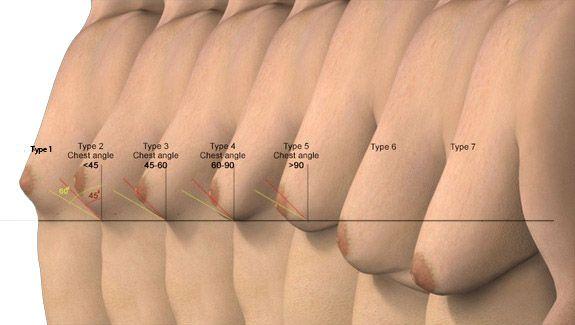 Fat Areola 108