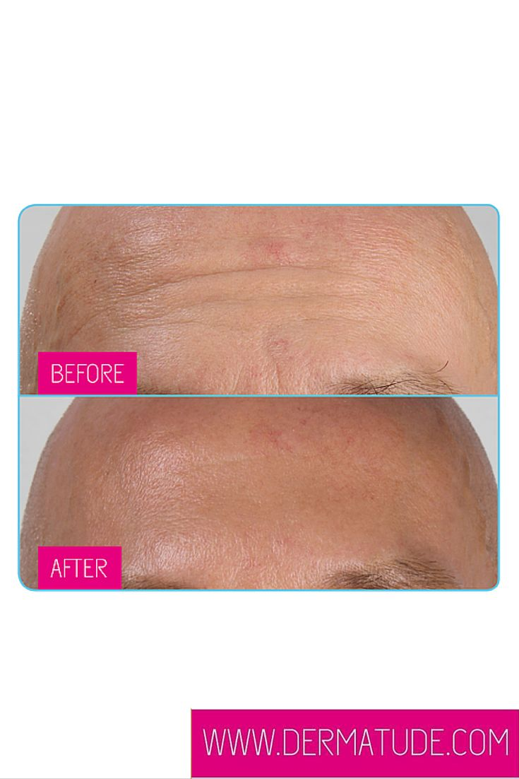#Dermatude Before and After Forehead