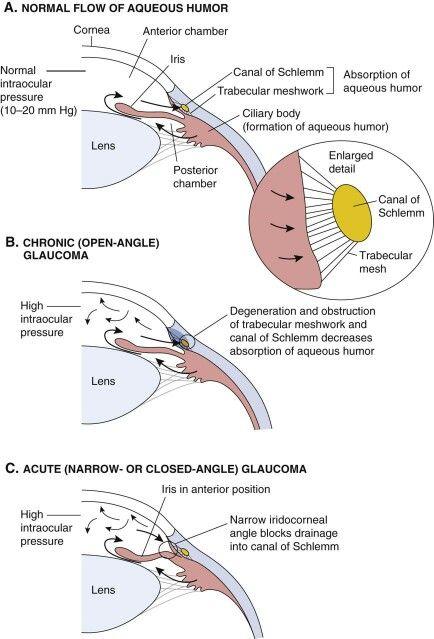 Qué es el glaucoma: es una enfermedad del ojo caracterizada por el aumento de la presión dentro del globo ocular que lleva a un daño progresivo en la retina e incluso, a la pérdida de la visión Referencias: (2017). S-media-cache-ak0.pinimg.com. Retrieved 3 May 2017, from https://s-media-cache-ak0.pinimg.com/originals/79/0c/66/790c6648d0f405d7004adf0e5622ac59.jpg