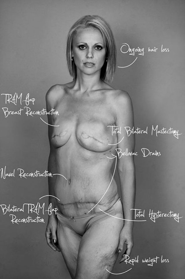 Breast Cancer Survivor Goes Naked on Facebook to Raise Awareness