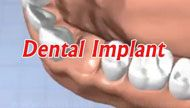A dental implant is a root device, used in dentistry to replace a tooth or to replace missing teeth.