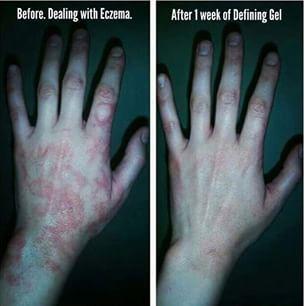 Eczema? Try it works defining gel!! I use it in my own son. It really does heal the skin.  yegwrapmom.com