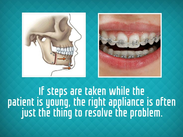 The main cause of an underbite is a misalignment of the lower jaw, which is usually present at birth. Several methods exist for correcting an underbite, from #jaw surgery to a range of orthodontic appliances. If steps are taken while the patient is young, the right appliance is often just the thing to resolve the problem.