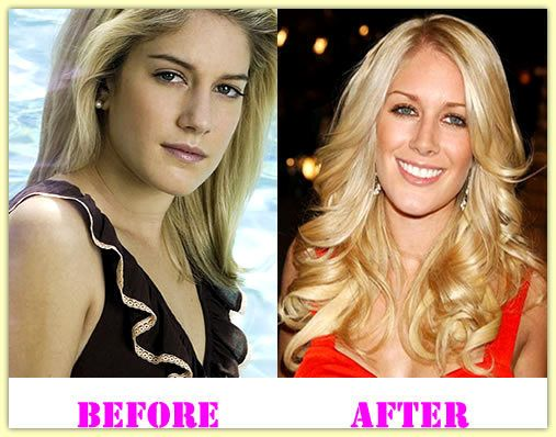 Heidi Montag Plastic Surgery Before And After #HeidiMontagPlasticSurgery #HeidiMontag #celebritiesplasticsurgery