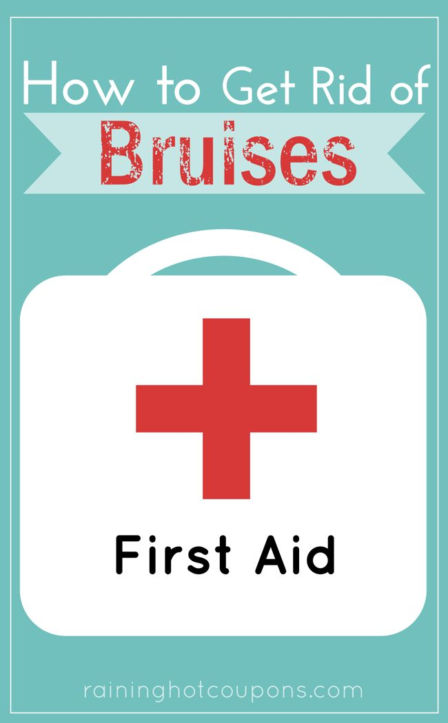 """How To Get Rid Of Bruises. This is pretty important for those of us who are trying to convince co-workers that spouses aren't abusing us, or have kids who """"run into a door"""" often, or, well, I'm sure some other people."""