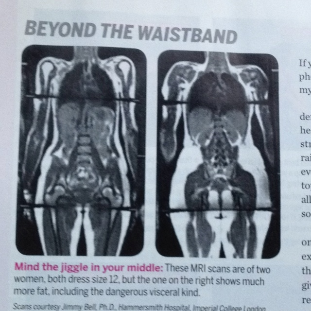 Body scan of 250 pound woman and 120 pound woman. If this