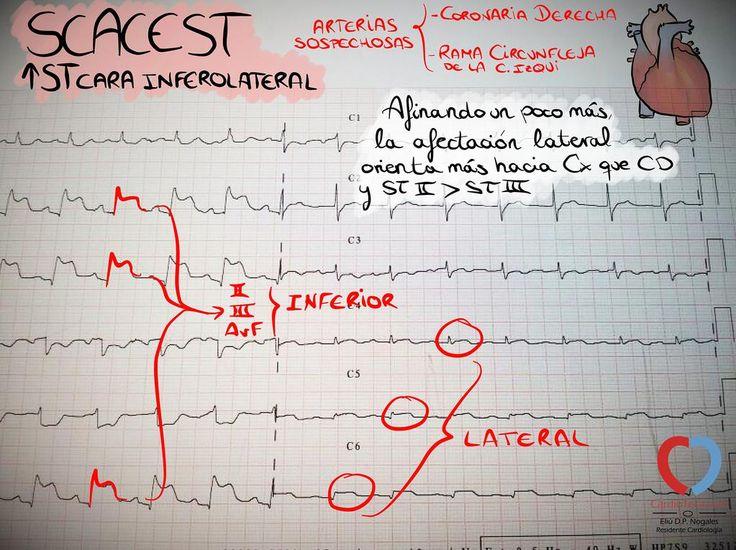 Si ST II > III y afectación de la cara lateral, Cx tiene más papeletas que CD @cardioteca