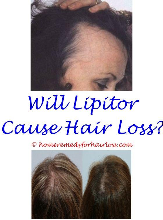 16 best Baby Hair Loss images on Pinterest   Beauty hacks, Hair ...